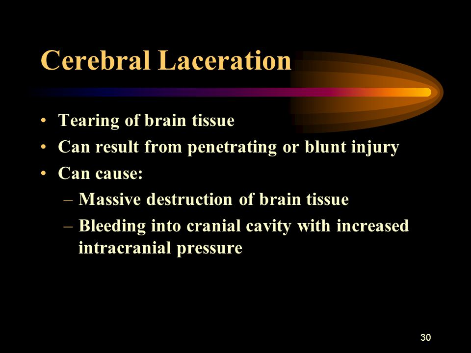 Cerebral Laceration Tearing of brain tissue