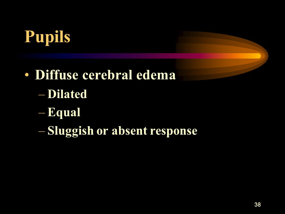 Pupils Diffuse cerebral edema Dilated Equal