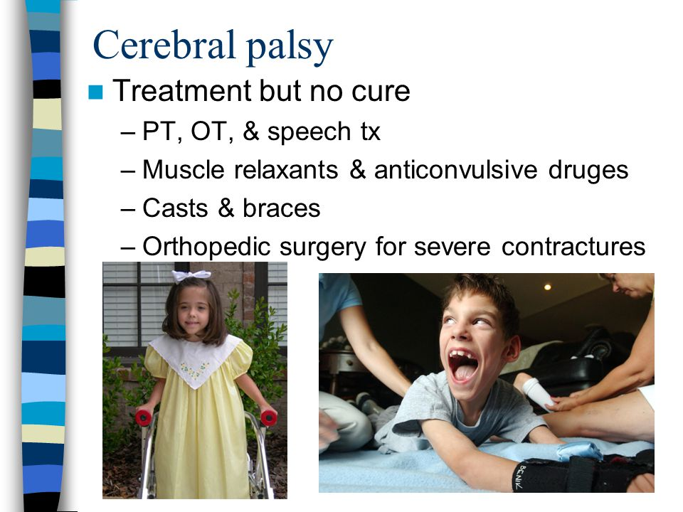 Cerebral palsy Treatment but no cure PT, OT, & speech tx