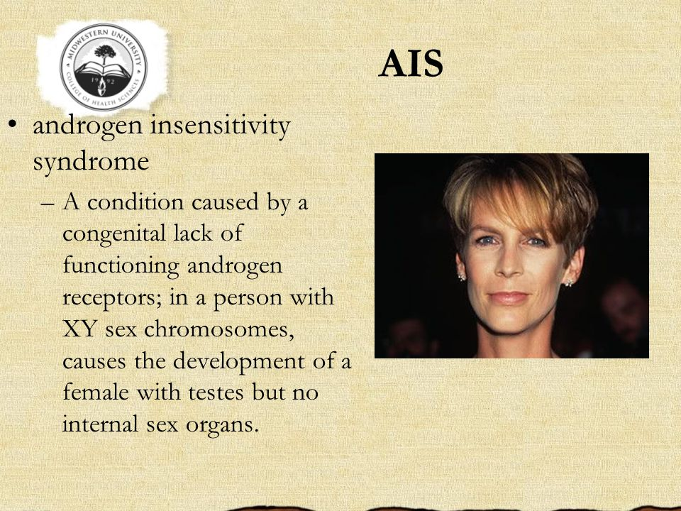 AIS androgen insensitivity syndrome