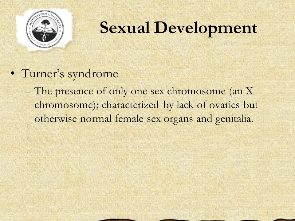 Sexual Development Turner's syndrome