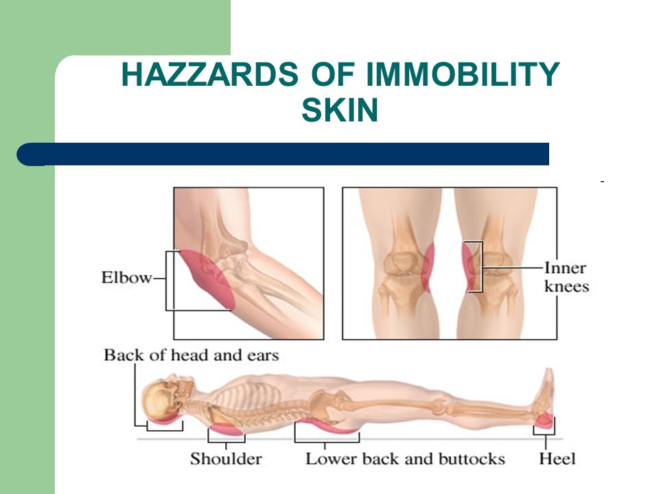 HAZZARDS OF IMMOBILITY SKIN