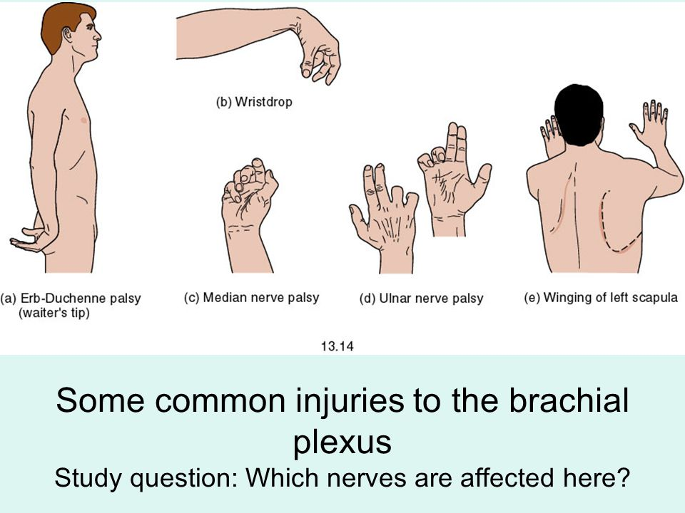 Some common injuries to the brachial plexus Study question: Which nerves are affected here