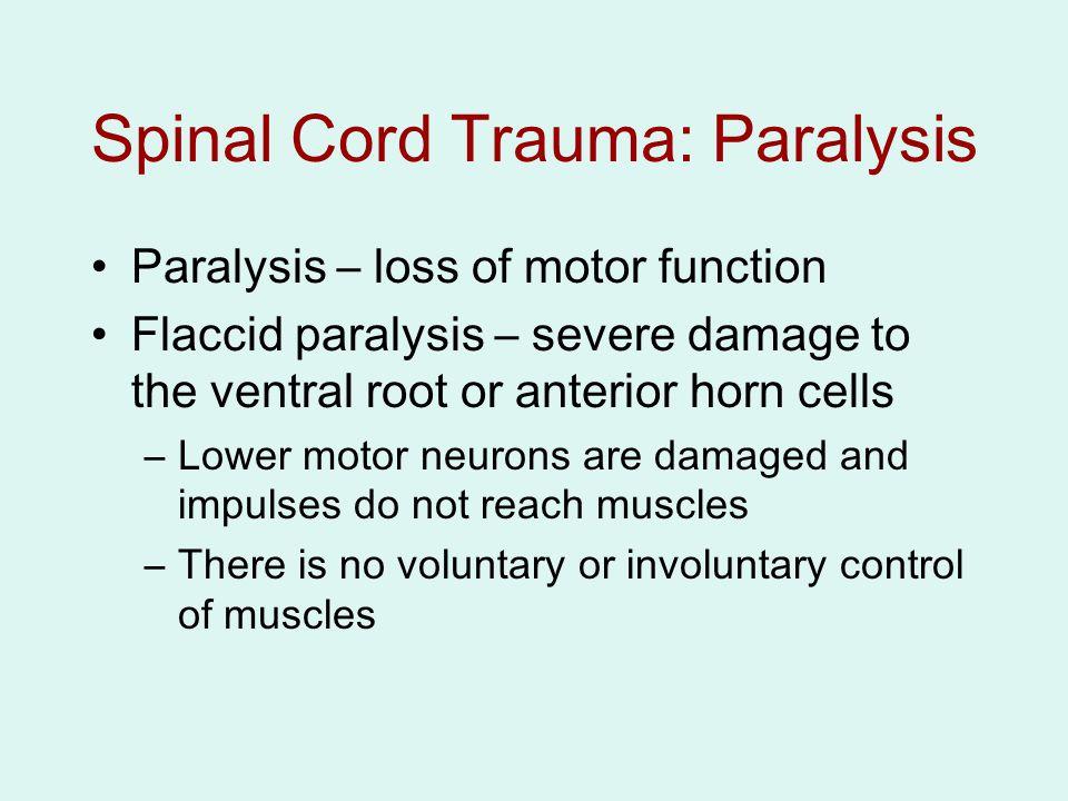 Spinal Cord Trauma: Paralysis