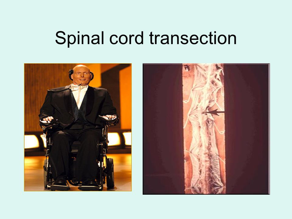Spinal cord transection
