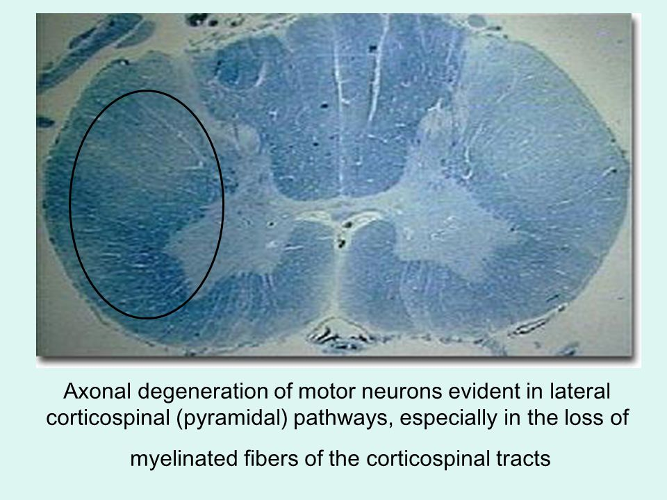 Axonal degeneration of motor neurons evident in lateral corticospinal (pyramidal) pathways, especially in the loss of myelinated fibers of the corticospinal tracts