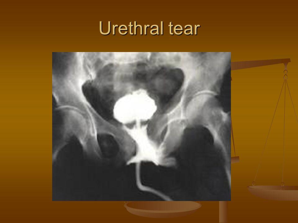 Urethral tear