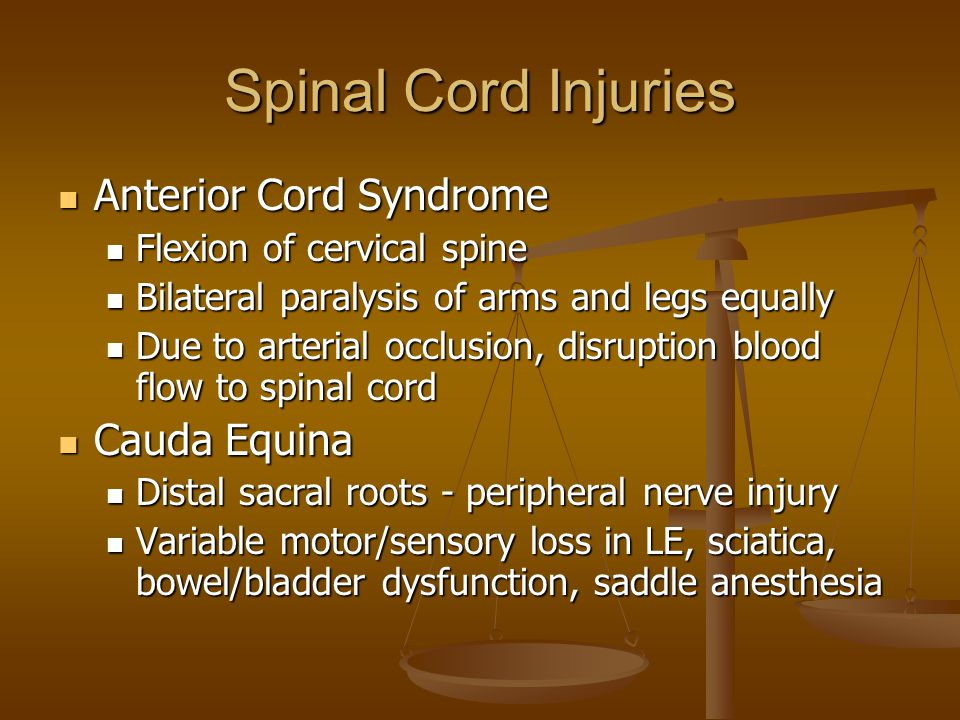 Spinal Cord Injuries Anterior Cord Syndrome Cauda Equina