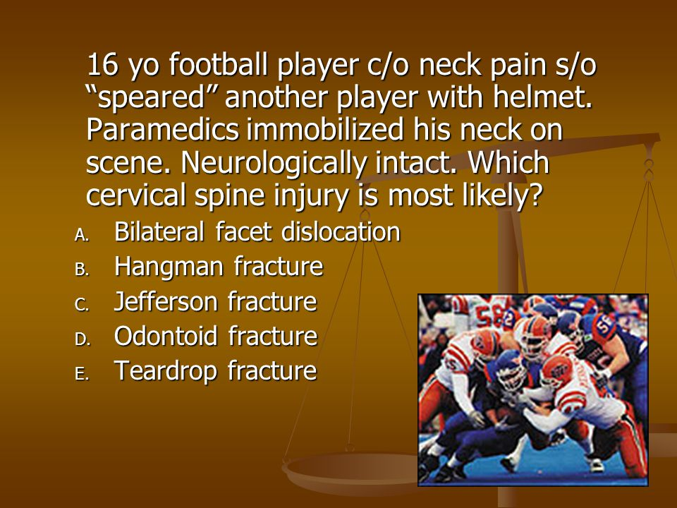 16 yo football player c/o neck pain s/o speared another player with helmet. Paramedics immobilized his neck on scene. Neurologically intact. Which cervical spine injury is most likely