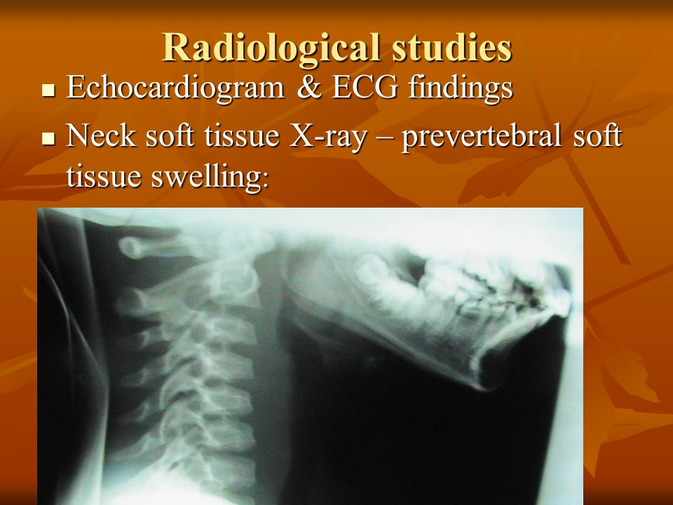 Radiological studies Echocardiogram & ECG findings