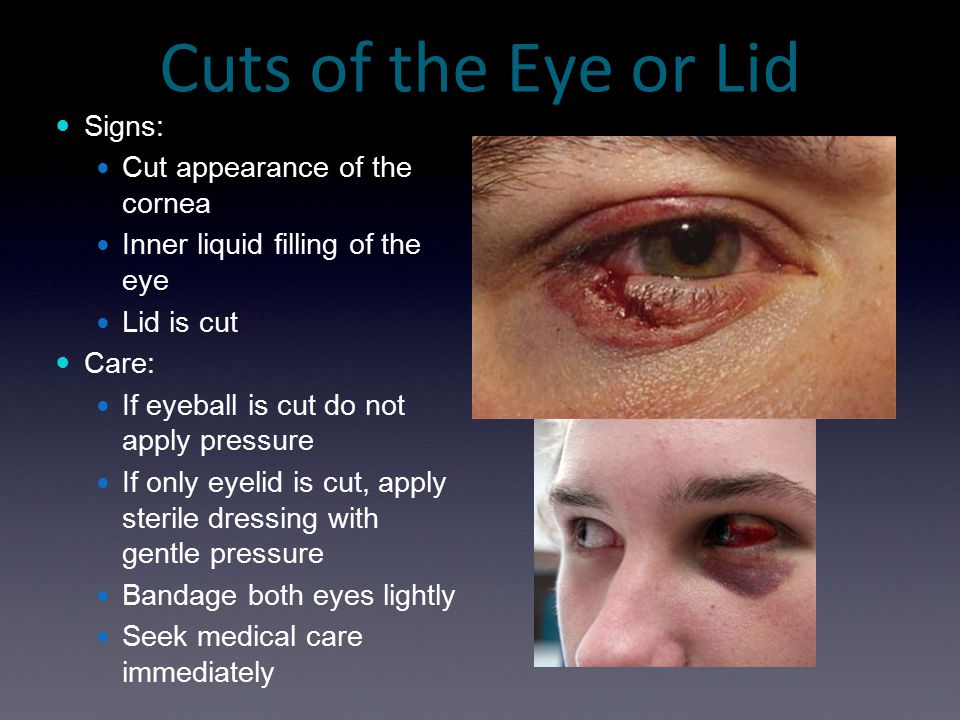 Cuts of the Eye or Lid Signs: Cut appearance of the cornea