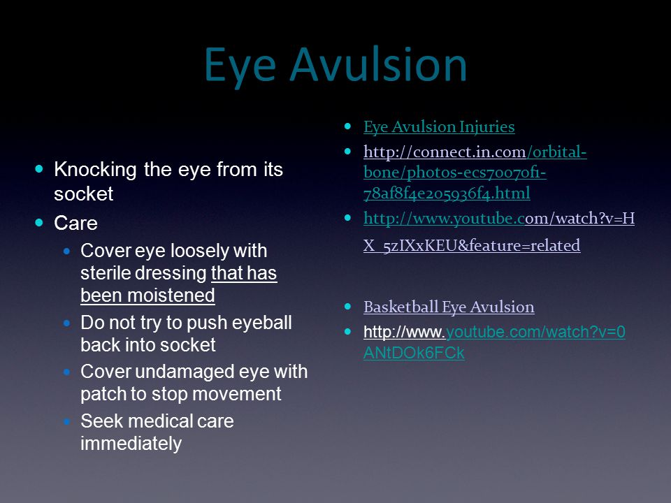 Eye Avulsion Knocking the eye from its socket Care