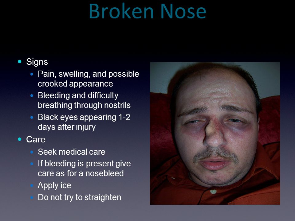 Broken Nose Signs Care Pain, swelling, and possible crooked appearance