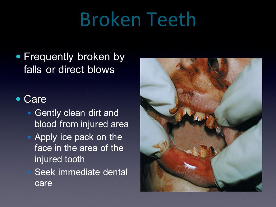 Broken Teeth Frequently broken by falls or direct blows Care