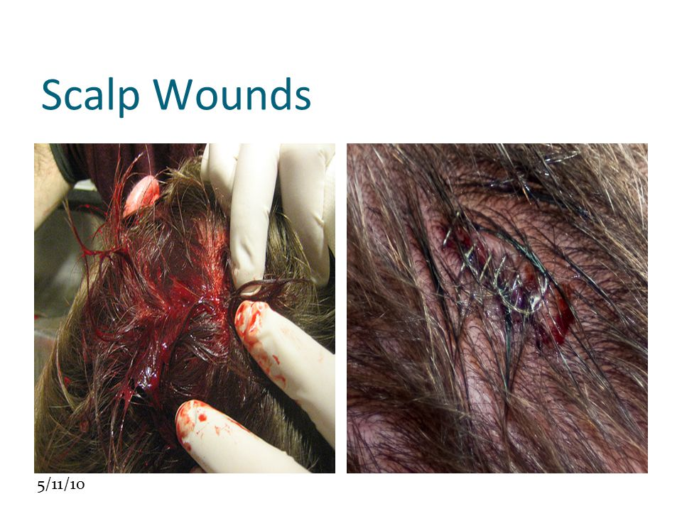 Scalp Wounds Click to edit the outline text format