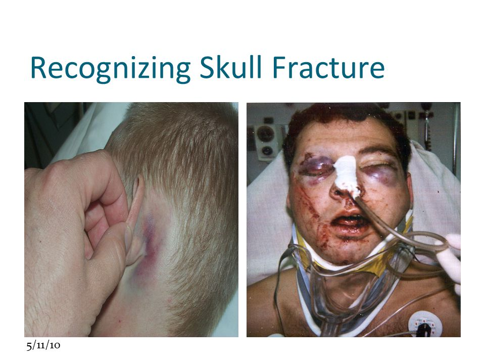 Recognizing Skull Fracture
