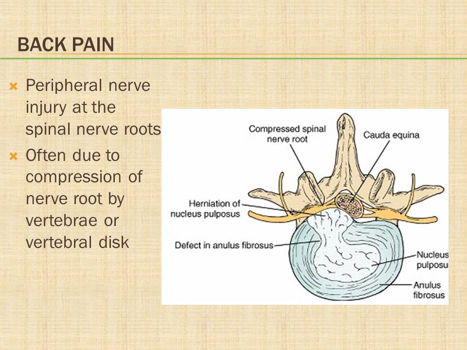 Back Pain Peripheral nerve injury at the spinal nerve roots