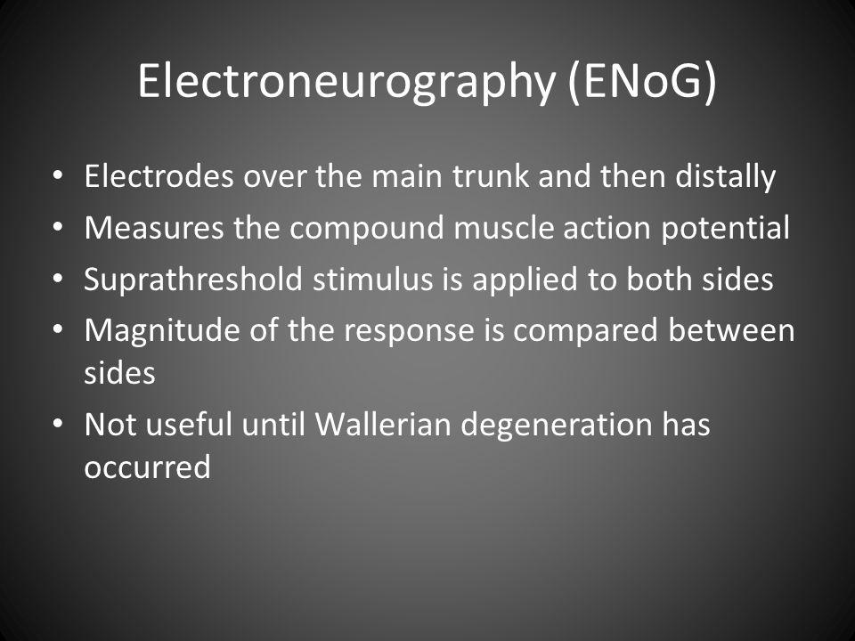 Electroneurography (ENoG)