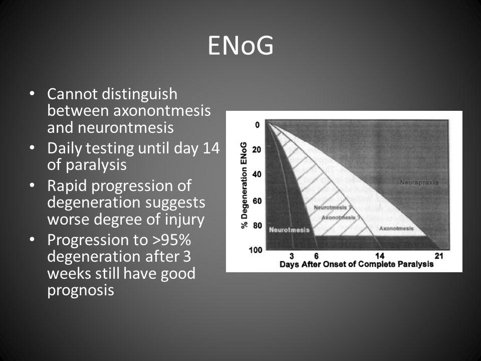 ENoG Cannot distinguish between axonontmesis and neurontmesis