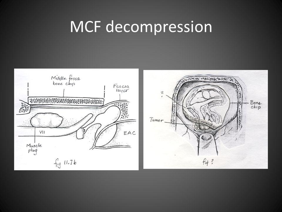 MCF decompression