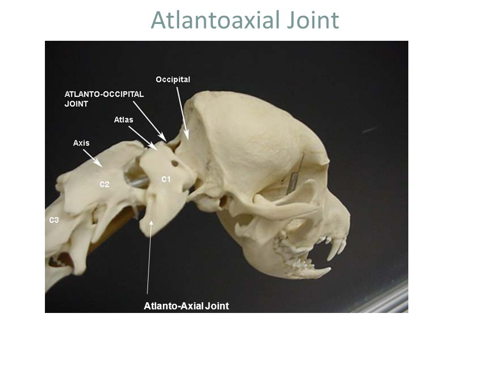 Atlantoaxial Joint Atlanto-Axial Joint