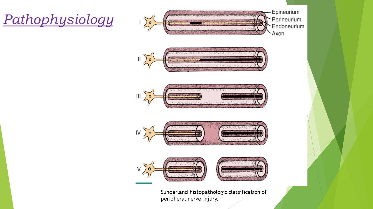 Pathophysiology Sunderland histopathologic classification of peripheral nerve injury.