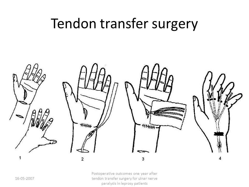 Tendon transfer surgery