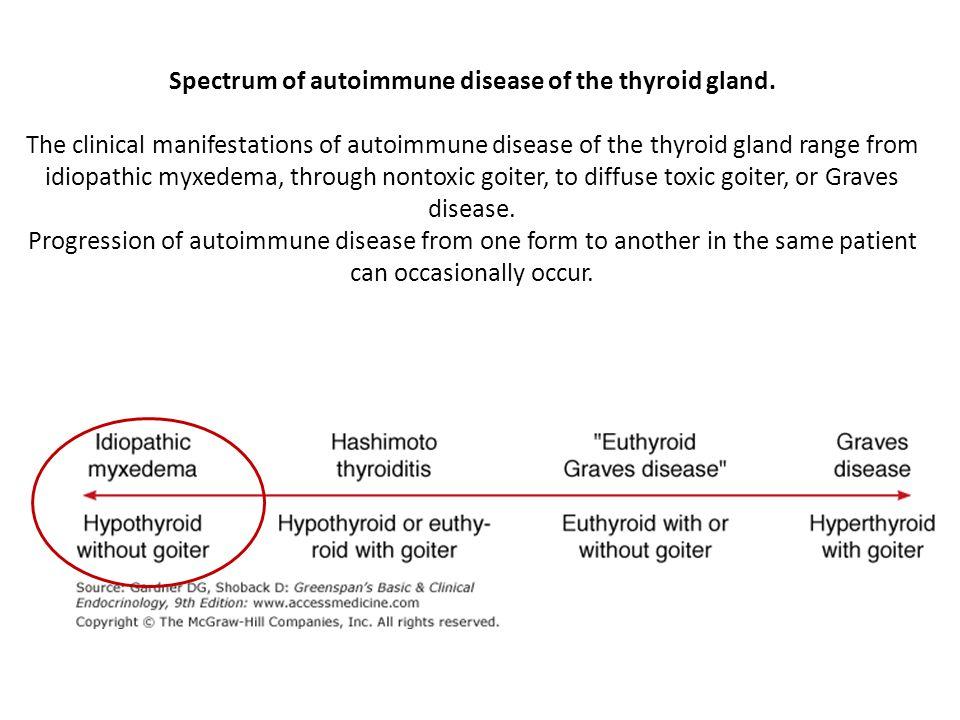 Spectrum of autoimmune disease of the thyroid gland