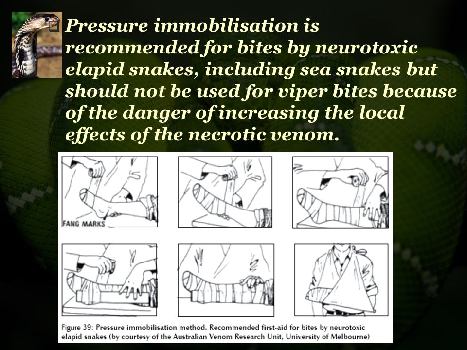 Pressure immobilisation is recommended for bites by neurotoxic elapid snakes, including sea snakes but should not be used for viper bites because of the danger of increasing the local effects of the necrotic venom.