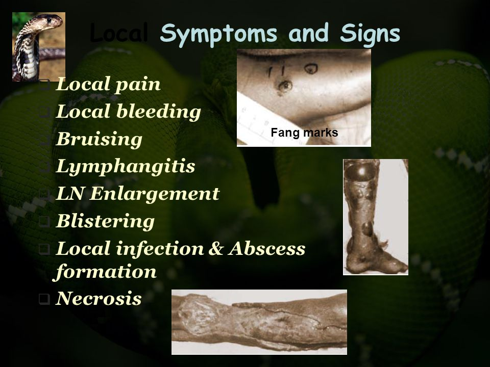 Local Symptoms and Signs