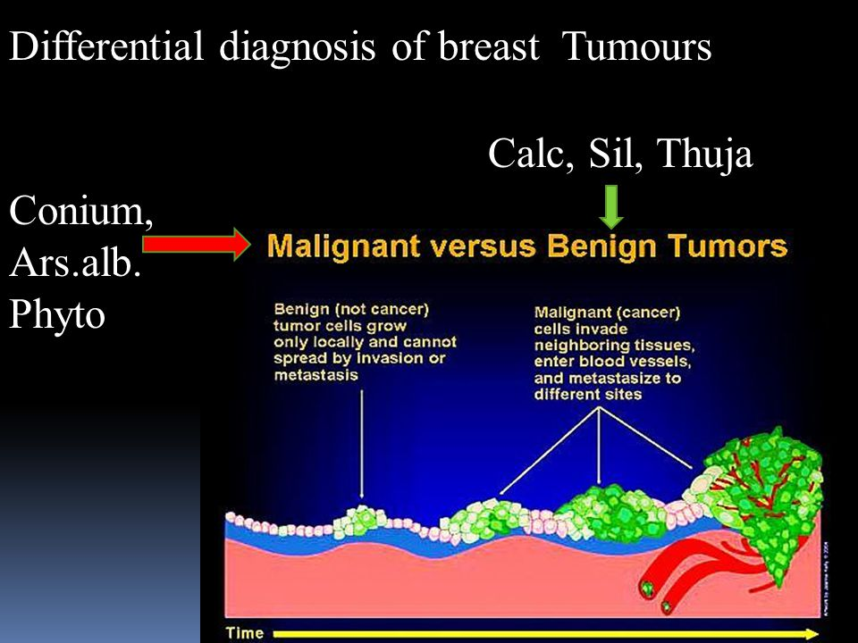 Differential diagnosis of breast Tumours