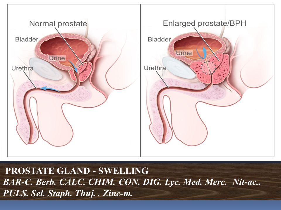 PROSTATE GLAND - SWELLING