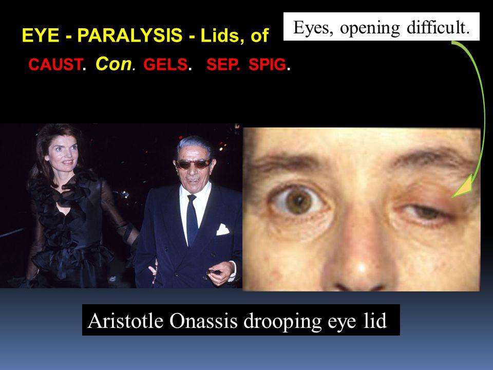 CAUST. Con. GELS. SEP. SPIG. Aristotle Onassis drooping eye lid