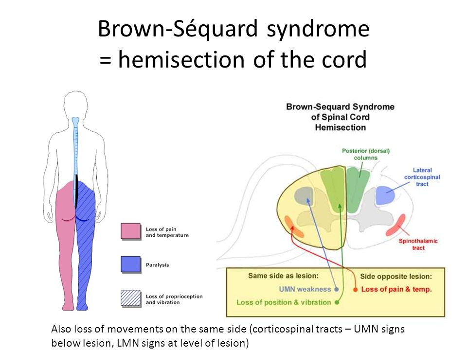 Brown-Séquard syndrome = hemisection of the cord