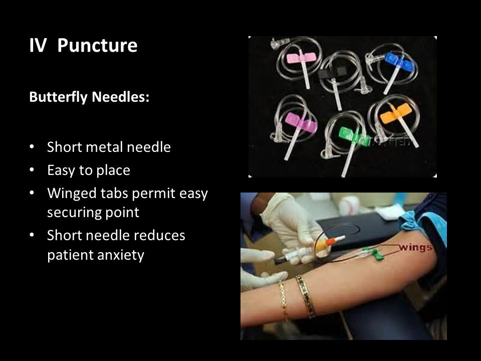 IV Puncture Butterfly Needles: Short metal needle Easy to place