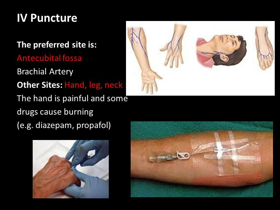 IV Puncture