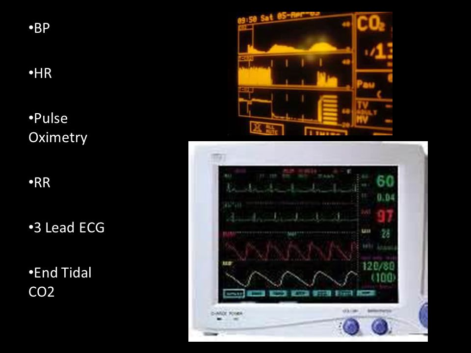 BP HR Pulse Oximetry RR 3 Lead ECG End Tidal CO2