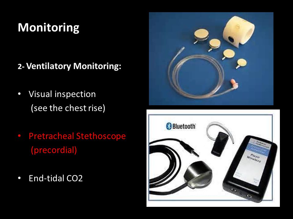 Monitoring Visual inspection (see the chest rise)