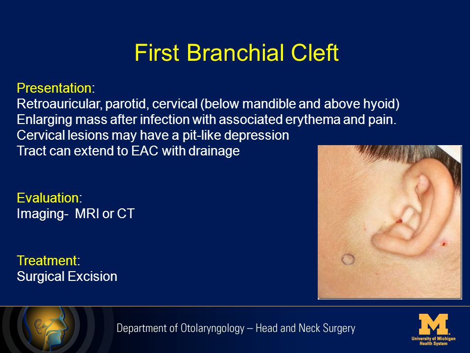 First Branchial Cleft Presentation: