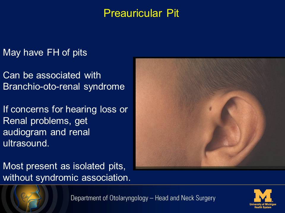 Preauricular Pit May have FH of pits Can be associated with