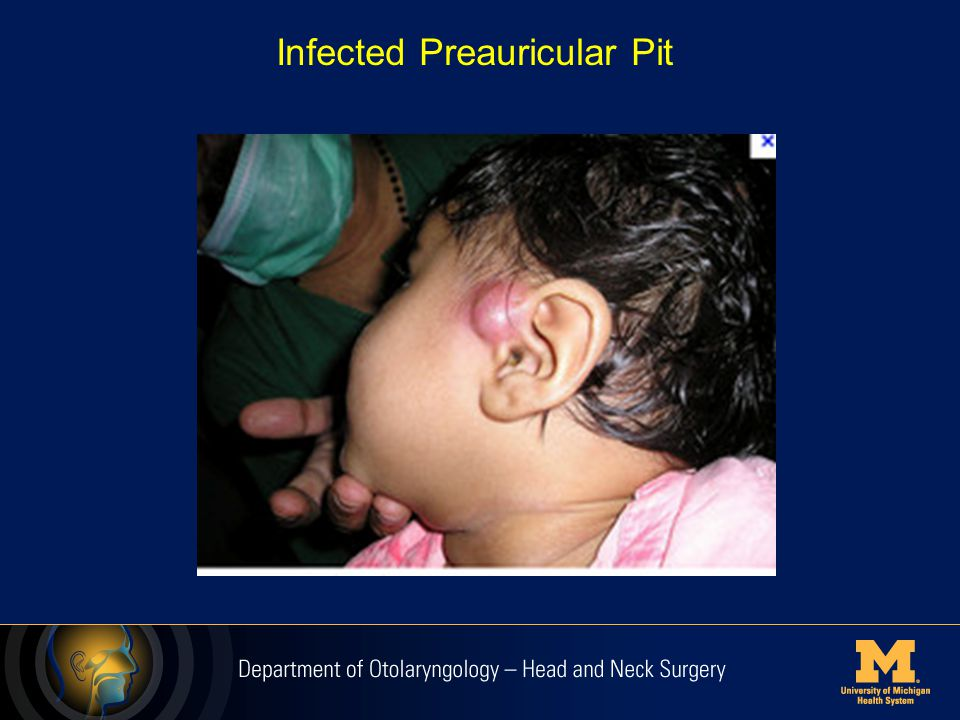Infected Preauricular Pit