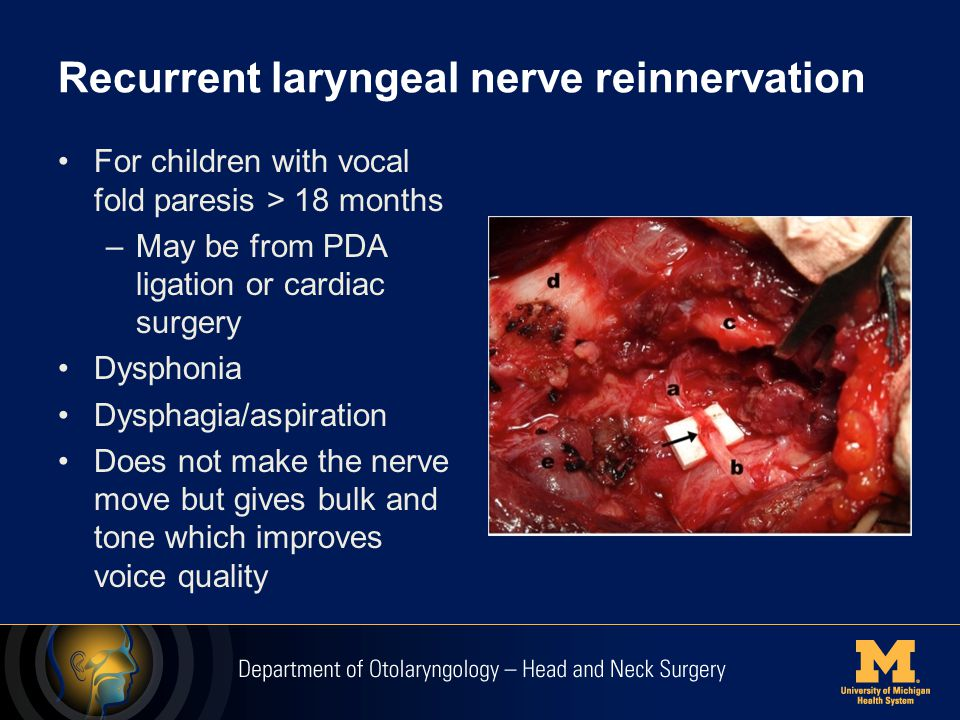 Recurrent laryngeal nerve reinnervation