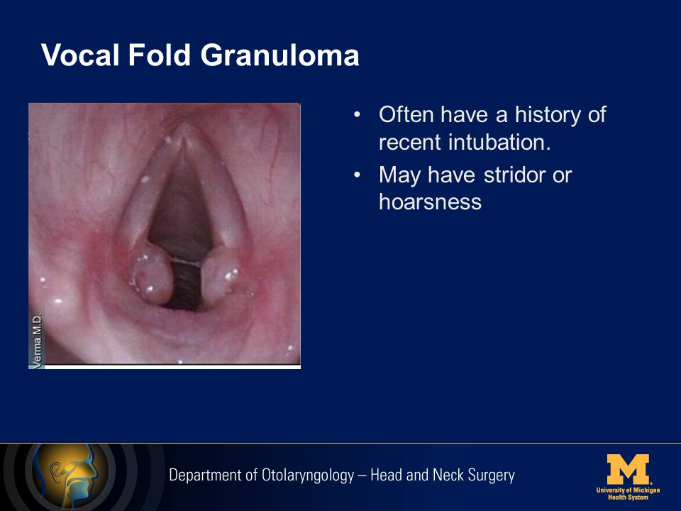 Vocal Fold Granuloma Often have a history of recent intubation.