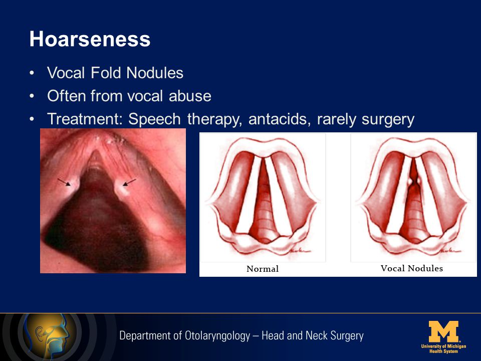 Hoarseness Vocal Fold Nodules Often from vocal abuse