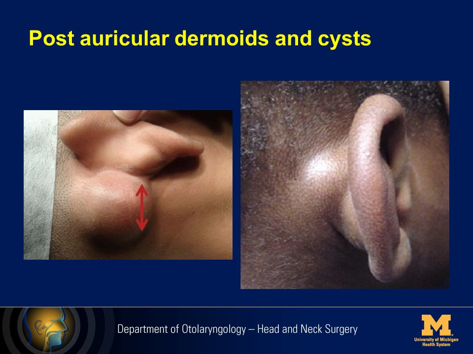 Post auricular dermoids and cysts
