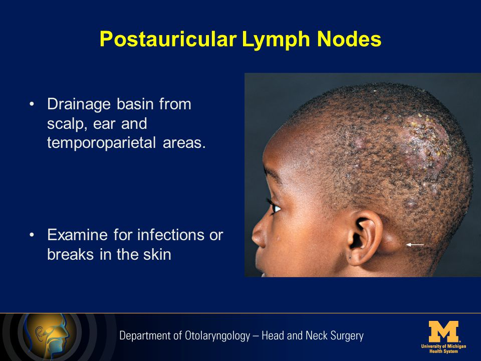 When to refer to ENT: Lumps, bumps, and others. - ppt ...