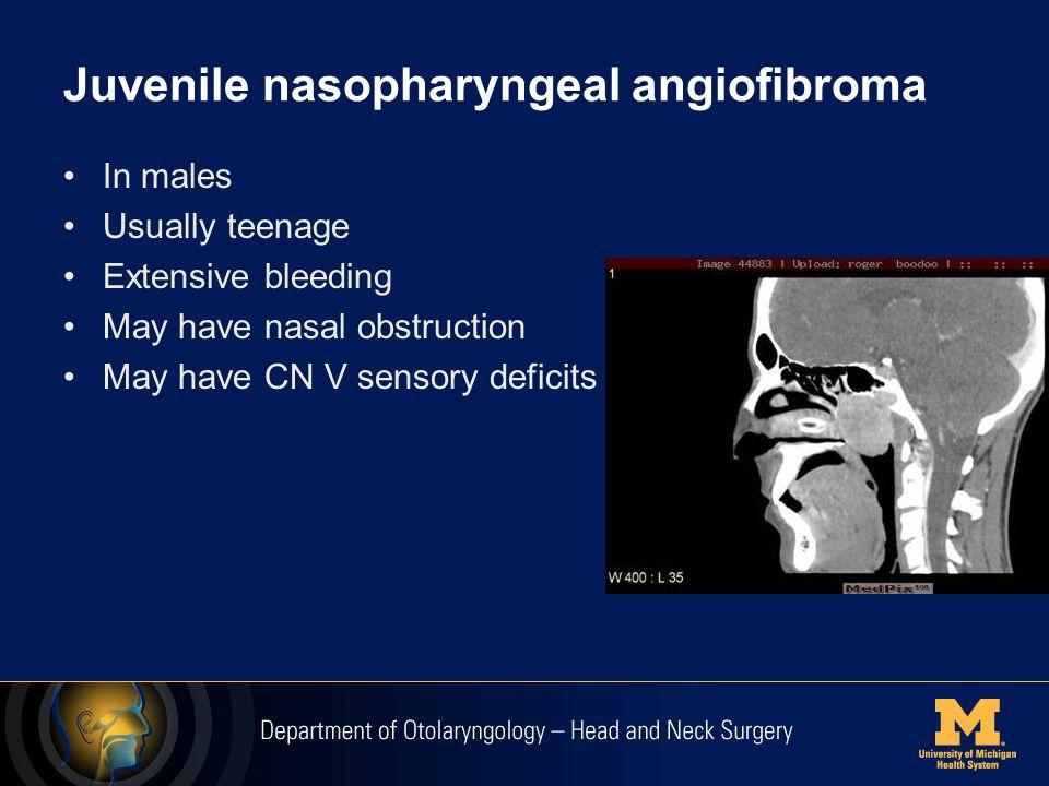 Juvenile nasopharyngeal angiofibroma