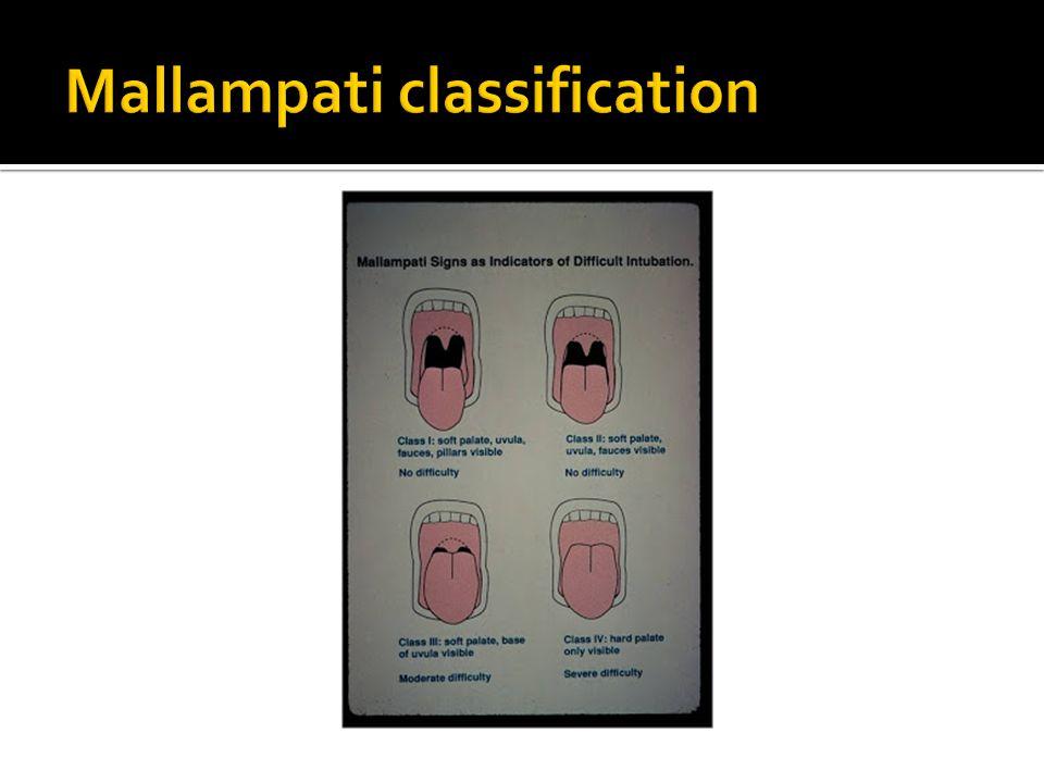 Mallampati classification