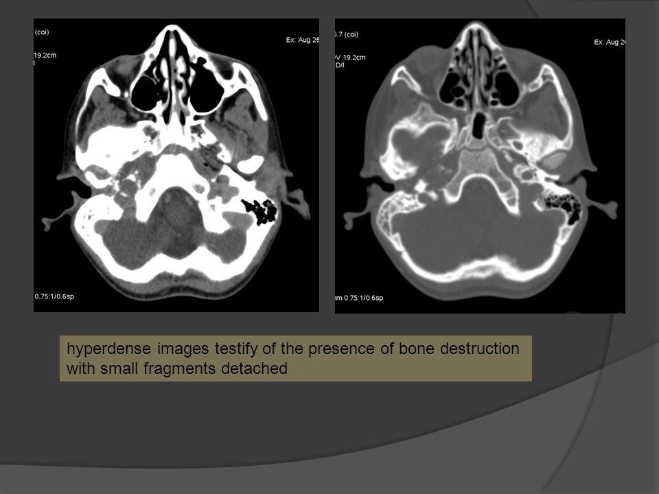 hyperdense images testify of the presence of bone destruction