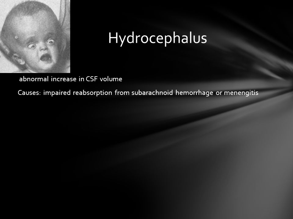 Hydrocephalus abnormal increase in CSF volume Causes: impaired reabsorption from subarachnoid hemorrhage or menengitis